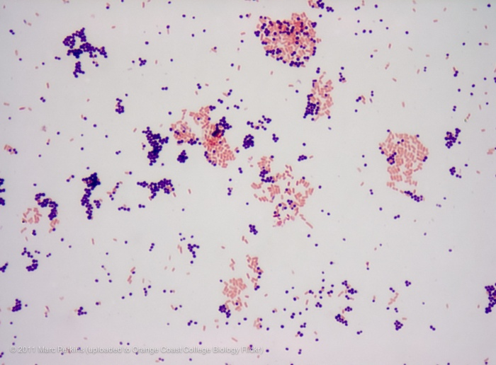 gram stain pos and neg